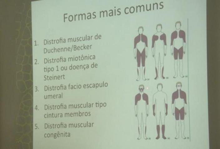 Bahiana-Distrofias-Musculares-Discussao-16-07-16_%2811%29.jpg